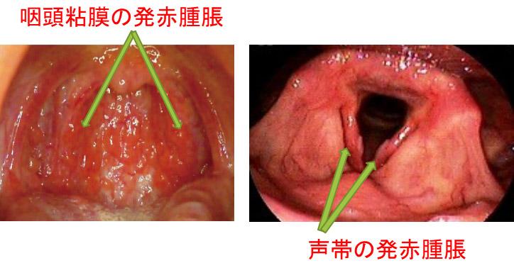 咽頭 炎 と は